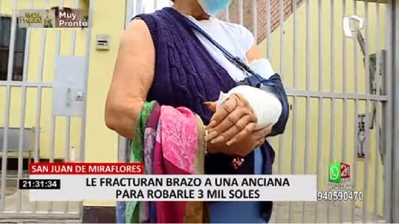 SJM: Ladrón fractura brazo a anciana tras tumbarla al piso por robarle sus pertenencias