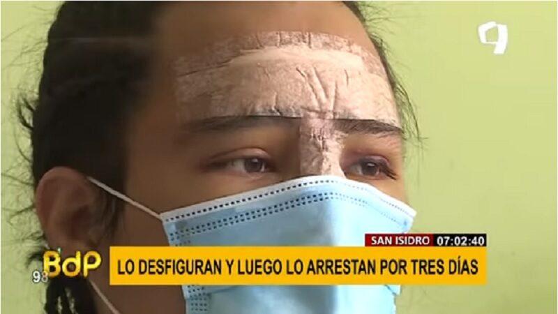 San Isidro: Hombre desfigura a su vecino y la policía rechaza la denuncia