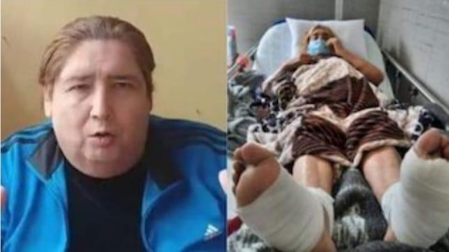 Tongo denuncia negligencia médica y teme que le amputen las piernas