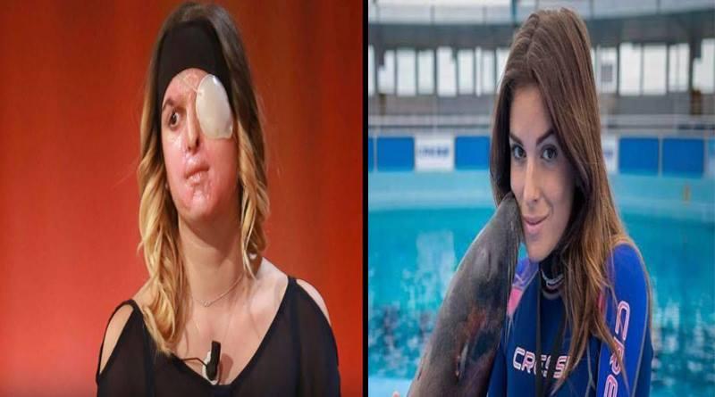Miss Italia: Así quedó su rostro luego que novio le rociara ácido