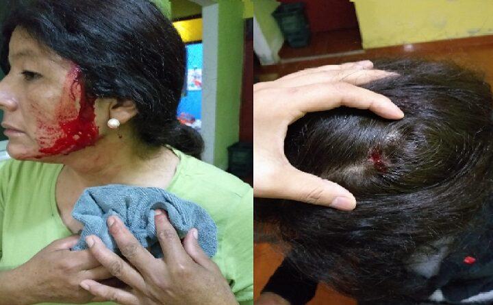 Callao: trabajadora de limpieza fue atacada de manera salvaje [FOTOS]