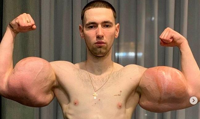 Brazo inyectado del 'Popeye ruso' 'explota' durante combate de MMA